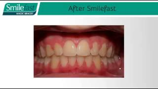 Smilefast Magic Braces For Adults